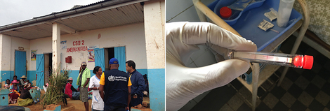 left: health centre in Madagasca; right: rapid test for plague. Source: RKI