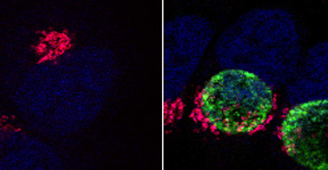 Uninfected human epithelium cells (left) with compact Golgi band close to the cell nucleus (blue) and cells infected with Chlamydiae trachomatis with Golgi fragments (red) which accumulate around the bacterial inclusion (green). Quelle: RKI