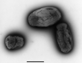 Brucella melitensis biovar abortus (Brucella). Transmission electron microscopy, negative staining. Bar = 500 nm. Source: RKI