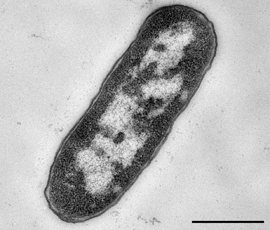 Cutout: Enterohemorrhagic Escherichia coli (EHEC) of the serotype O104:H4. Electron microscopy, negative staining. Bar = 500 nm. Source: Michael Laue, Janett Piesker/RKI