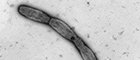 Cutout: Burkholderia mallei, amastigote bacteria (chain forming). Transmission electron microscopy, negative staining. Bar = 1 μm. Source: RKI