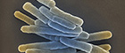 Cutoutt: Mycobacterium tuberculosis. Scanning electron microscopy. Bar = 1 µm. Source: Gudrun Holland 2013/RKI