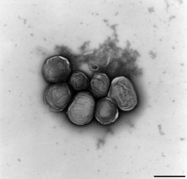 Francisella tularensis, cluster of bacteria. Transmission electron microscopy, negative staining. Bar = 1 μm. Source: RKI